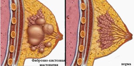 A fibrózis prosztát kezelése